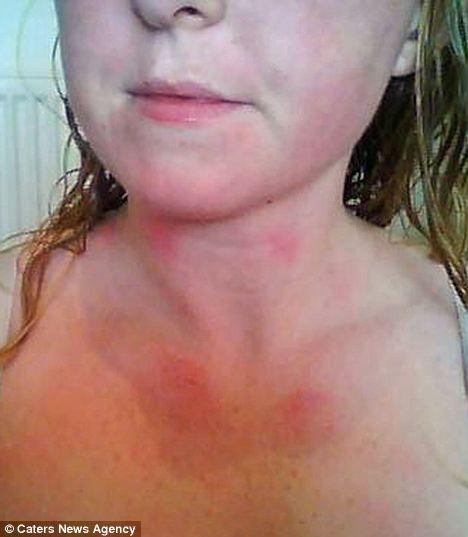Alergiška vandeniui
