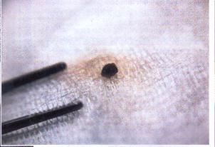 ateiviu implantai3
