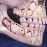 Vaiko kaukolė prieš prarandant pieninius dantis