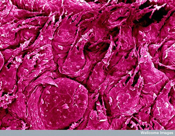 liezuvio pavirsius pro mikroskopa