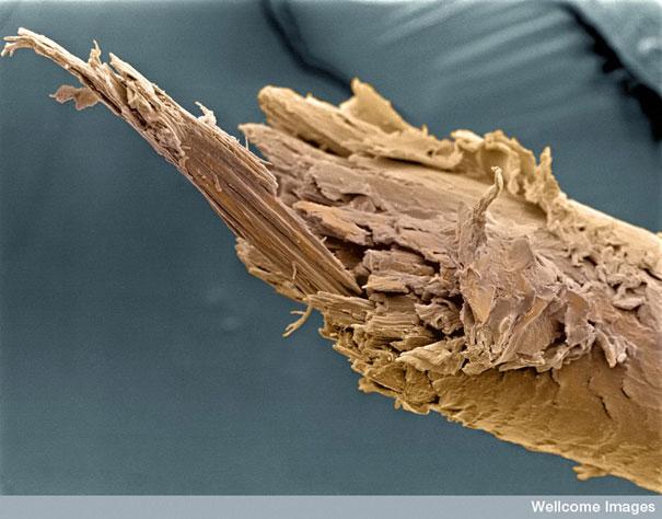 zmogaus plaukas pro mikoskopa