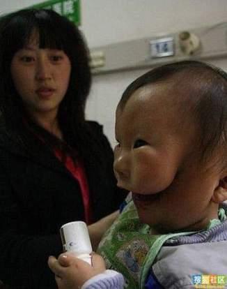 kudikis su issigimusiu veidu (2)