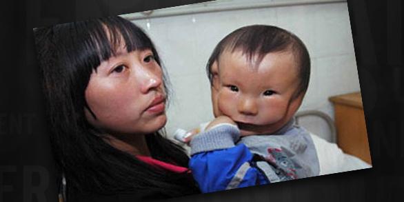 kudikis su issigimusiu veidu (3)