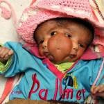 Kūdikis su dviem veidais