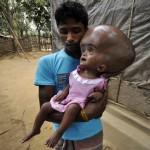 Indų mergaitei dvigubai didesne galva atlikta sėkminga operacija