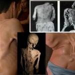 10 keistų ligų, apie kurias niekada negirdėjote