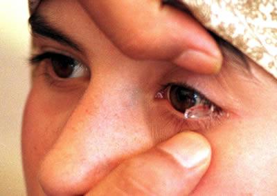 Krištolinės ašaros