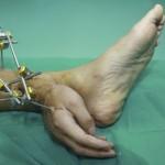 Kinų gydytojai plaštaką prisiuvo prie kulkšnies