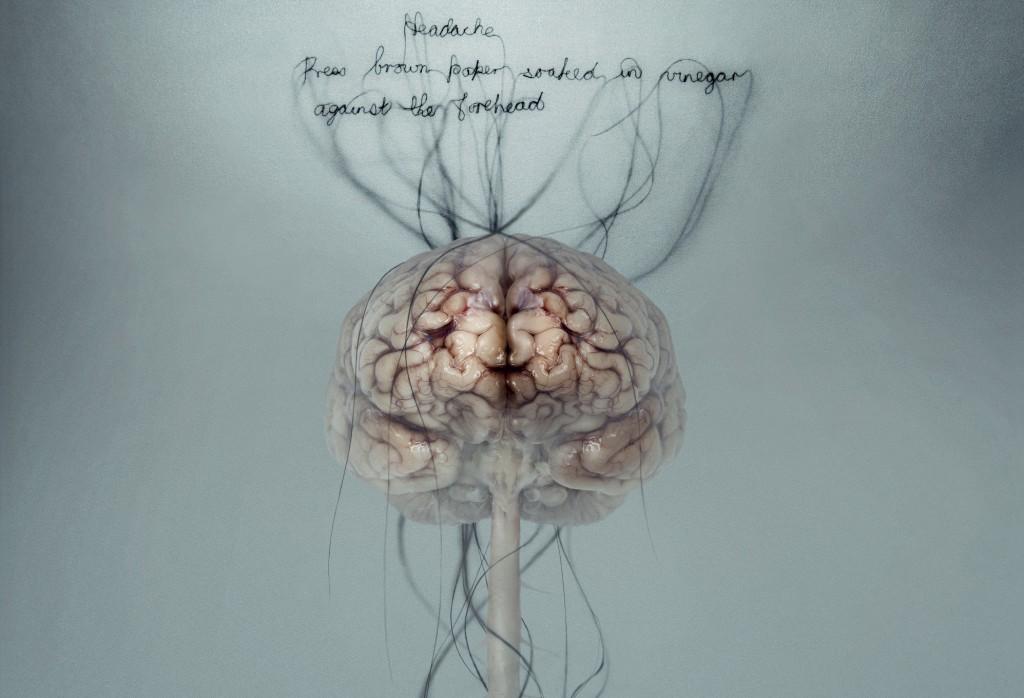 skausmas smegenys