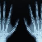 Žmonės – rentgenai: matyti nematomą