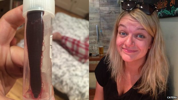 Po kelionės, mergina savo nosyje aptiko 7,5 cm gyvį